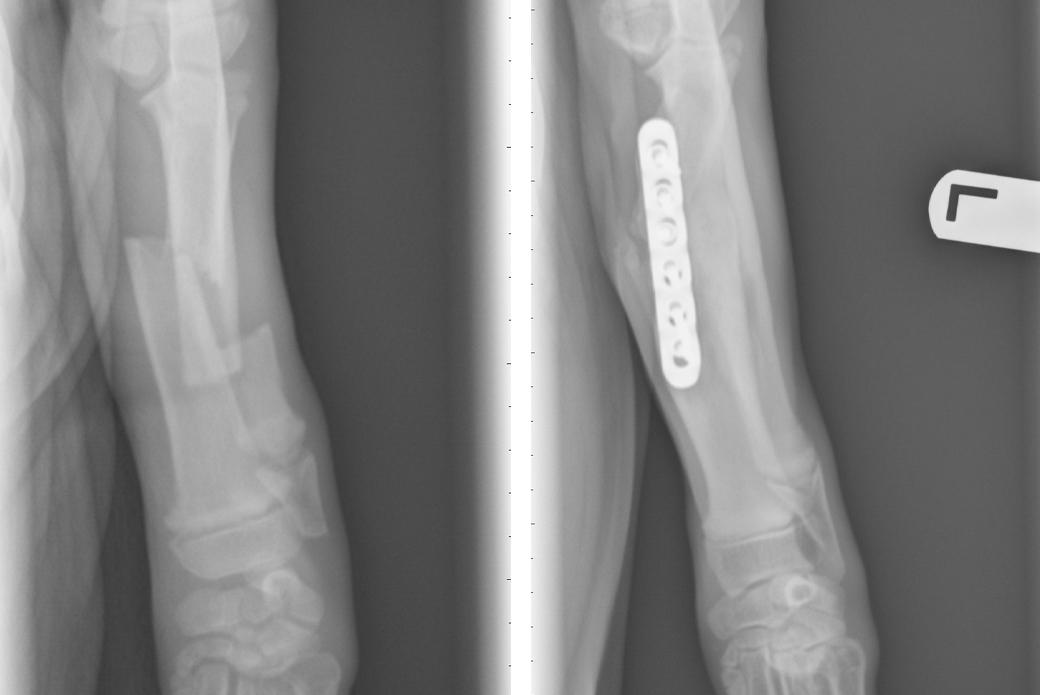 Rambo's x-rays